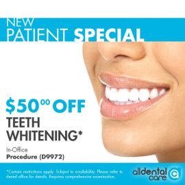 TEETH-WHITENING-SPECIAL